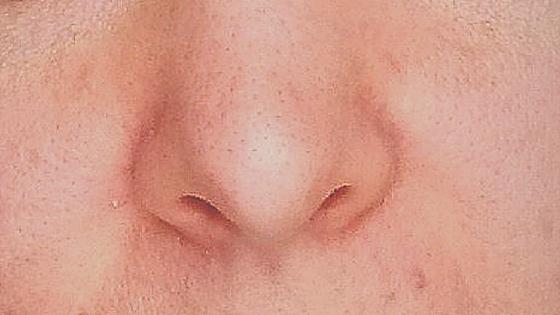 černé tečky nos