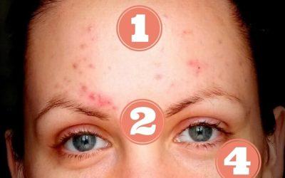 Face mapping – mapa vašeho akné